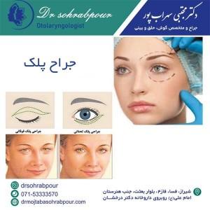 جراح پلک شیراز