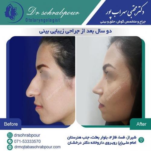 جراحی بینی در شیراز 105