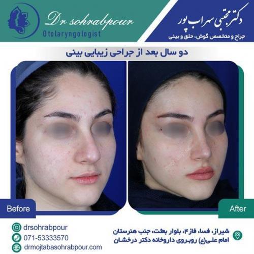 جراحی بینی در شیراز 125
