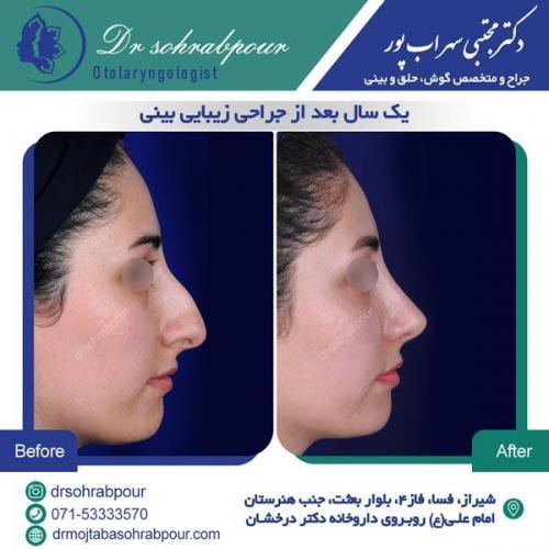 جراحی بینی در شیراز 128