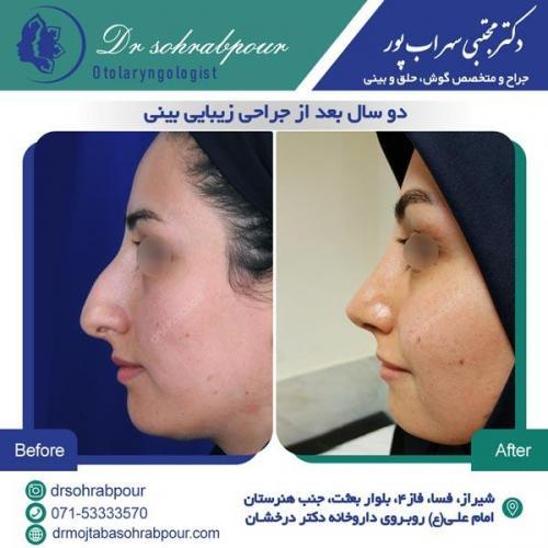 جراحی بینی در شیراز 131