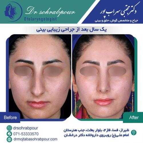 جراحی بینی در شیراز 132