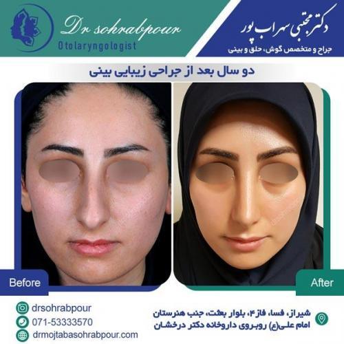 جراحی بینی در شیراز 133