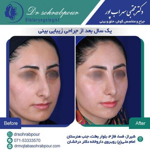 جراحی بینی در شیراز 134