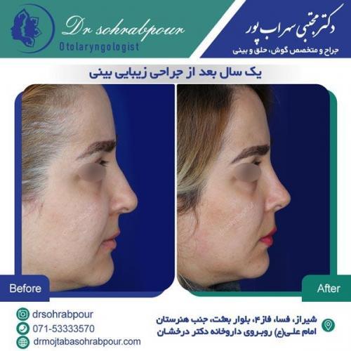 جراحی بینی در شیراز 138