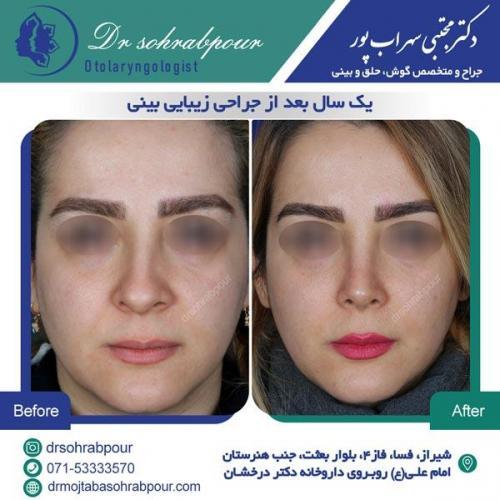 جراحی بینی در شیراز 139