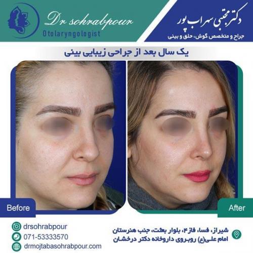 جراحی بینی در شیراز 140