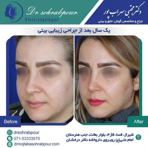 جراحی بینی در شیراز 141