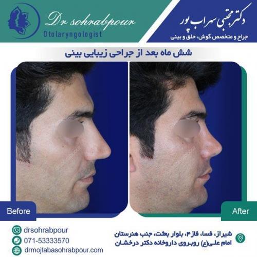 جراحی بینی در شیراز 142