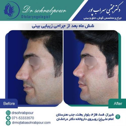 جراحی بینی در شیراز 143