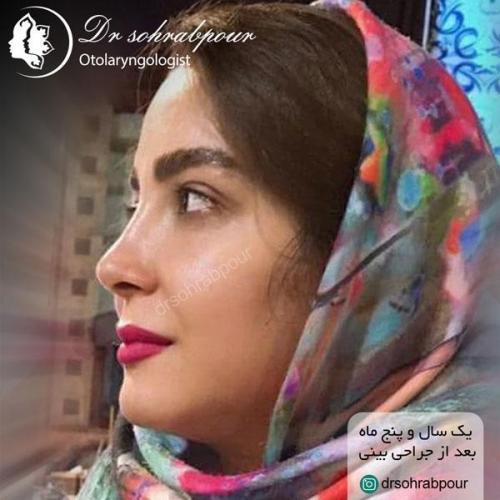 جراحی بینی در شیراز 146