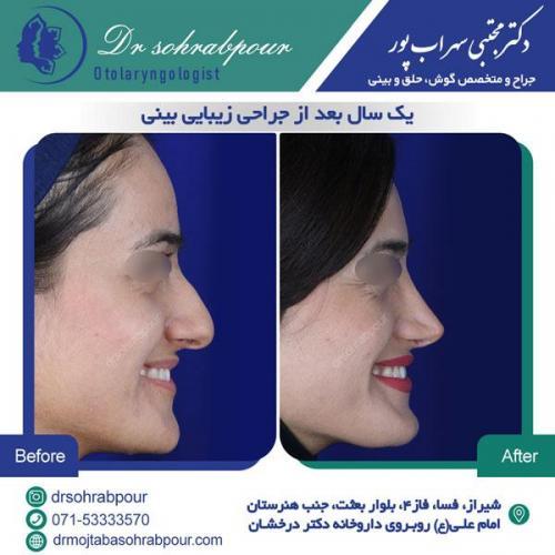 جراحی بینی در شیراز 148