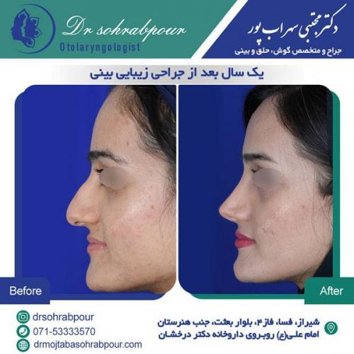 جراحی بینی در شیراز 149