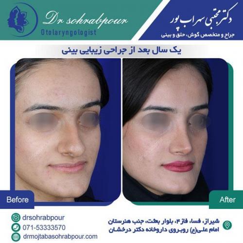 جراحی بینی در شیراز 154