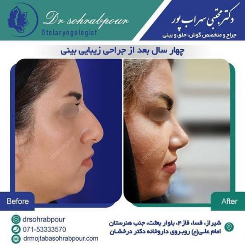 جراحی بینی در شیراز 158