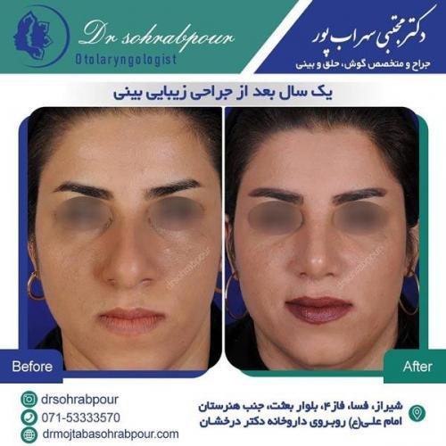 جراحی بینی در شیراز 159