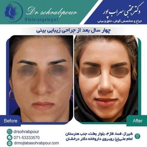 جراحی بینی در شیراز 160