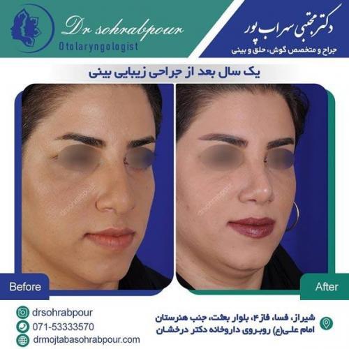 جراحی بینی در شیراز 161
