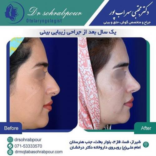 جراحی بینی در شیراز 163