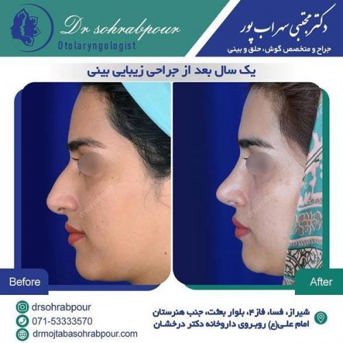 جراحی بینی در شیراز 165