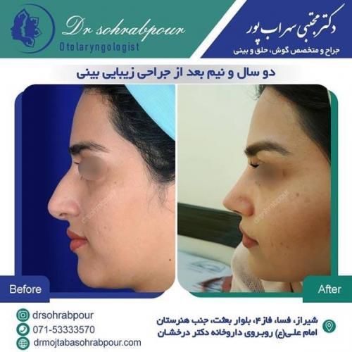 جراحی بینی در شیراز 166