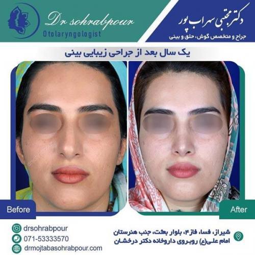 جراحی بینی در شیراز 168