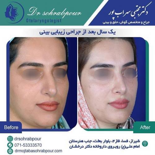 جراحی بینی در شیراز 170
