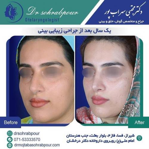 جراحی بینی در شیراز 171