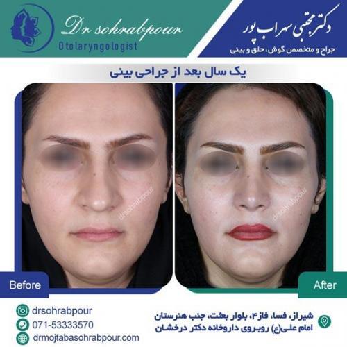 جراحی بینی در شیراز 29
