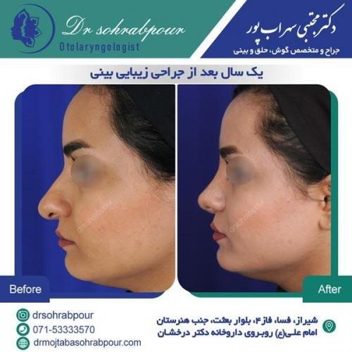 جراحی بینی در شیراز 50