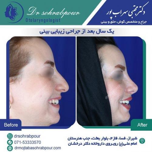 جراحی بینی در شیراز 70