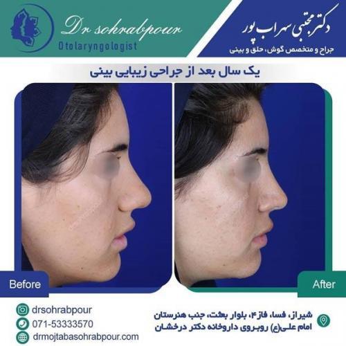 جراحی بینی در شیراز 72