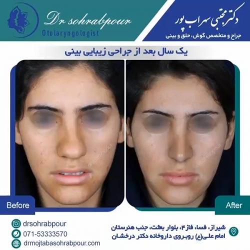 جراحی بینی در شیراز 75
