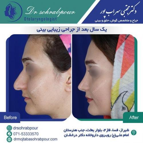 جراحی بینی در شیراز 78